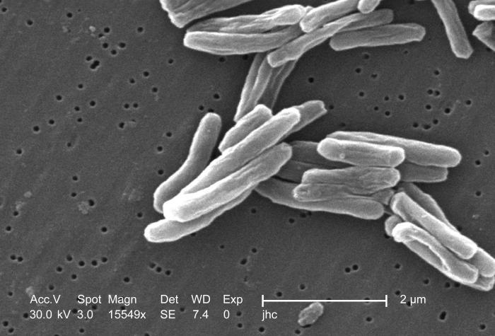 mycobacterium_tuberculosis_8438_lores.jpg