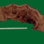 colon-afectado-crohn.jpg